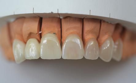 Versorgung des Zahnes mit Frontal-Zahnkronen und Veneers